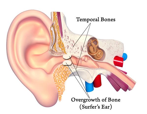 Surfer's Ear Diagram