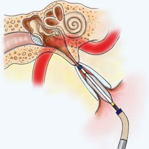 eustachian-tube-dilation