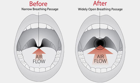 surgical-snoring-solutions