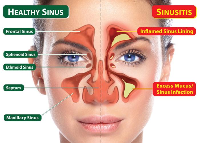 Camarillo Sinusitis Treatment Specialists